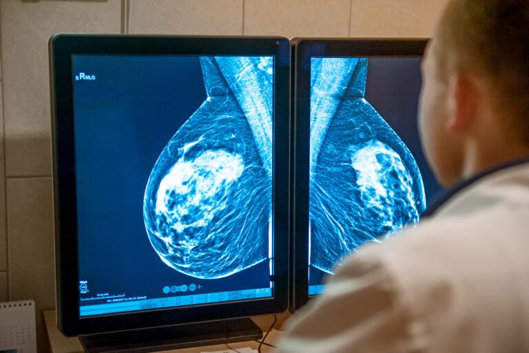 Radio cancer du sein predilife